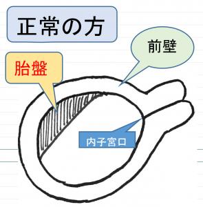 が 低い 胎盤 の 位置