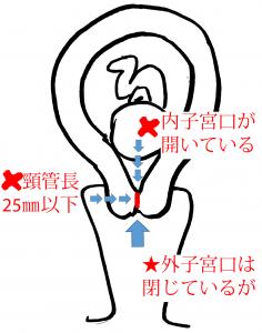 子宮口 開く 症状